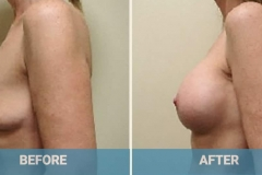 before-and-after-augmentation-2
