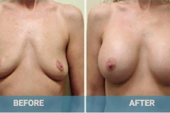 breast-implant-before-after