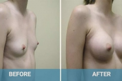 breast-implants-gold-coast