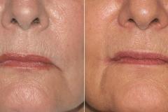 corner-lip-surgery