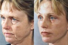 face-lift-procedure-before-and-after