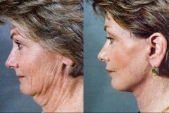 neck-face-lift-surgery
